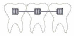 Orthodontist Braces embroidery design